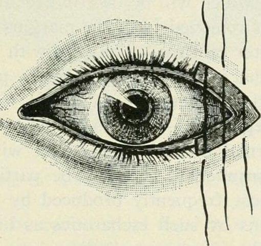 Eye wood cut